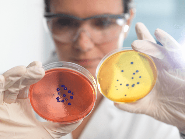 Image of a researcher examining bacteria.
